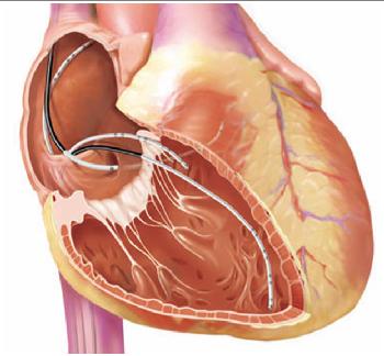 Выявить аномалию сердца