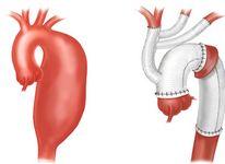 Чем опасна аневризма аорты сердца