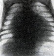 Своевременное обнаружение расширения аорты