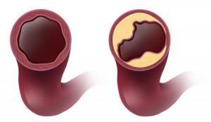 Симптомы наличия уплотнений аорты