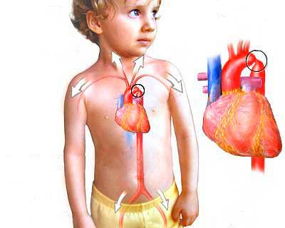 Проблемы с аортой у новорожденных детей