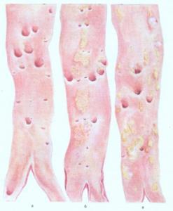 Как возникают уплотнение аорты