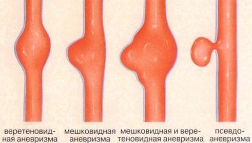 Аневризма: характеристика болезни