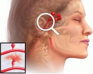 Симптомы, сопровождающие разрыв аневризмы