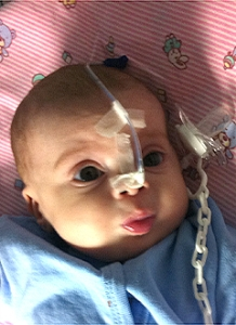 Врожденный порок легочной артери у младенцев