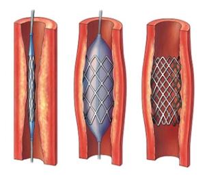Лечение атеросклероза сонных артерий