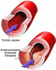 Холестерин лпонп норма у женщин