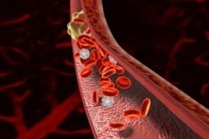Почему может развиться тромбоз артерий ног