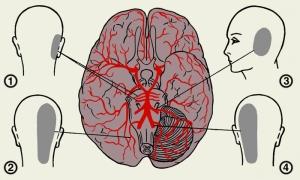 Артерии для кровоснабжения мозга