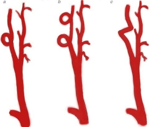 Нарушение работы позвоночных артерий