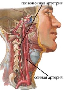 Почему возникает непрямолинейность хода позвоночных артерий