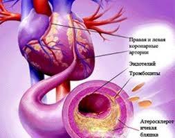 Почему могут возникнуть бляшки в артериях