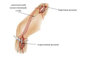 Причины возникновения окклюзии нижних конечностей