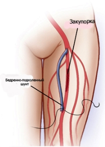 Как осуществляют шунтирование артерий нижних конечностей