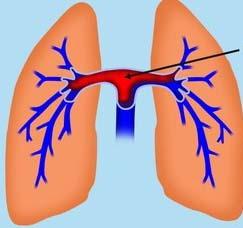 Симптомы стеноза легочной артерии