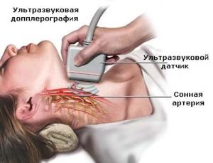 Сканирование брахиоцефальных артерий