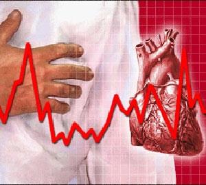 Как проявляет себя синусовая аритмия сердца