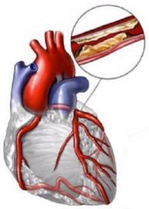 Норма уровень сахара холестерин в крови