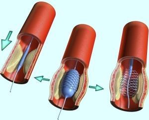 Стенирование артерий что это такое