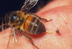 Пчелиные укусы в лечении варикоза