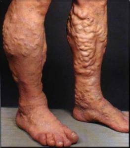 Какую угрозу для ног несет варикоз