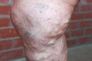 Варифорт в лечении варикоза
