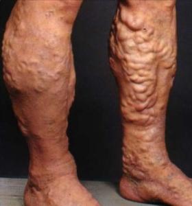 Что такое ретикулярный варикоз ног