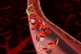 Осложнения варикоза вен малого таза
