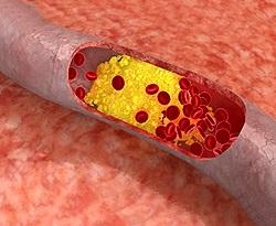 Атеросклероз сосудов головного мозга симптомы и лечение диета