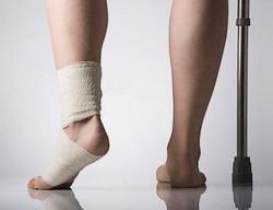 Травмы как причины тромбофлебита