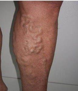 Применение лекарств при тромбофлебите