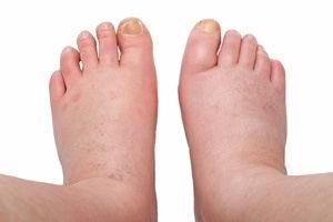 Закупорка вен на ногах — причины тромбоза, его симптомы и лечение