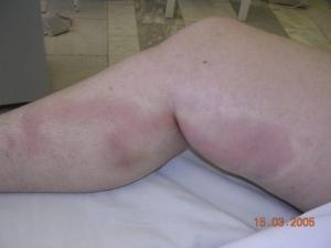 Отечность ног как признак тромбофлебита