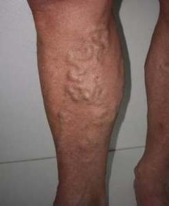 Что такое тромбофлебит вен ног