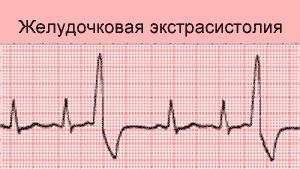 Почему появляются сбои в сердечном ритме
