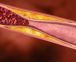 В чем опасность повышенного холестерина