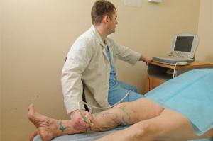 Проведение дуплексного сканирования вен нижних конечностей