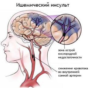 NARUShENIE-KROVOOBRAShhENIJa-V-SOSUDAH-GOLOVNOGo-MOZGA