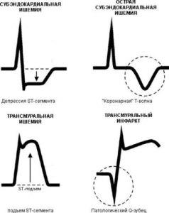 Степень изменения зубцов при ишемии