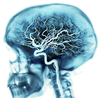 Методы изучения сосудов мозга