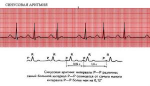 Расшифровка ЭКГ при синусовой аритмии