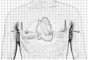 Стадии болезни на ЭКГ