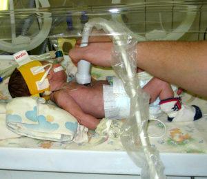 Как делают УЗИ сердца новорожденным