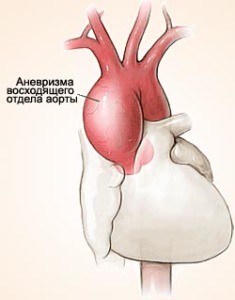 Образование аневризмы в восходящем отделе аорты