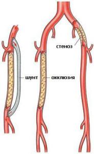 Преимущества аорто-бедренного шунтирования