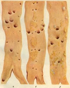 Поражение аорты вследствие атеросклеротических изменений