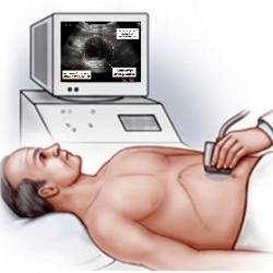 Выявление аневризмы аорты в брюшном отделе