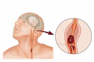 Лечение аневризмы головного мозга — эндоваскулярная эмболизация