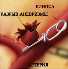 lechenie-anevrizmy-sonnoj-arterii