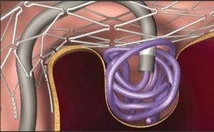 Эндоваскуляторная эмболизация аорты мозга